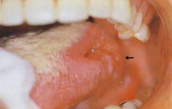 口腔がんを予防しよう!セルフチェックで早期発見!治癒率アップ